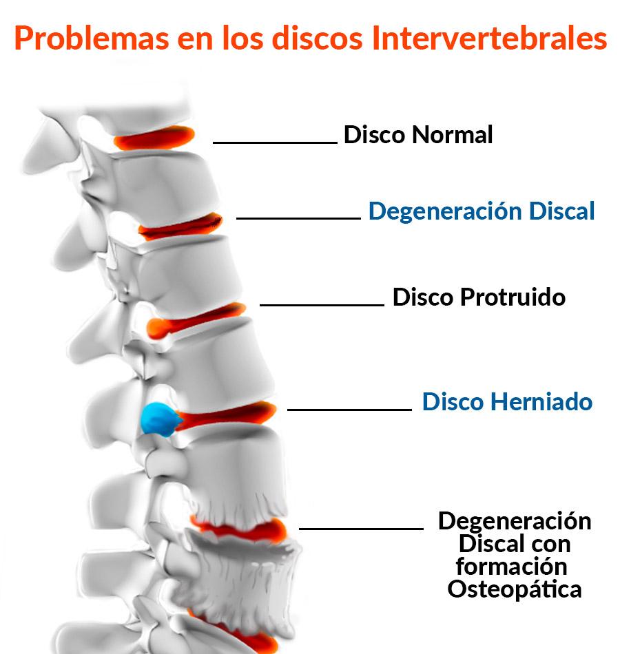 Problemas en los discos intervertebrales