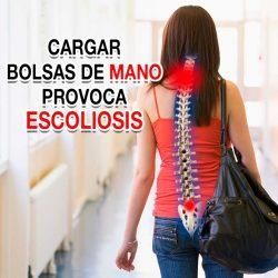 Cargar bolsas de mano provoca escoliosis