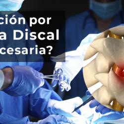 Operación por Hernia Discal ¿es necesaria?