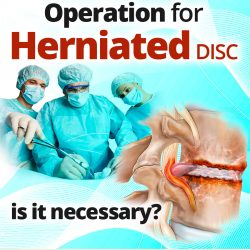Operation for Herniated Disc, is it necessary?